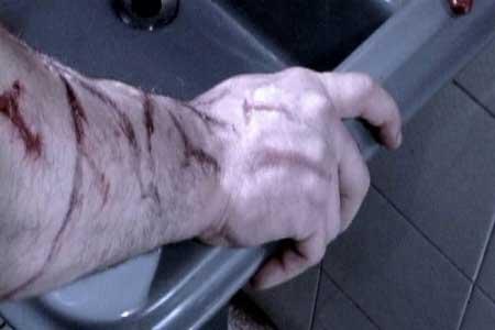 colecao-de-humanos-mortos-from-3-cortes-the-dead-human-collection-2005-5